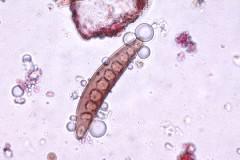 spori helminthosporium)